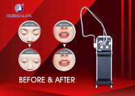 Yag Laser Q - Switch IPL RF Beauty Equipment For Tattoo And Birth Mark Removal