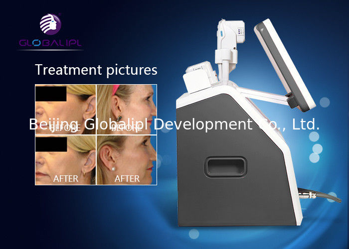 Medical Hifu Beauty Machine For Instant Wrinkle Removal And Face Lifting Body Slimming