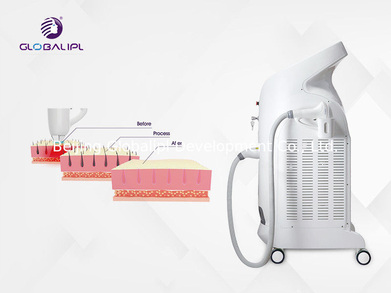 Three Wavelength 755nm 808nm 1064nm Diode Laser Hair Removal Machine