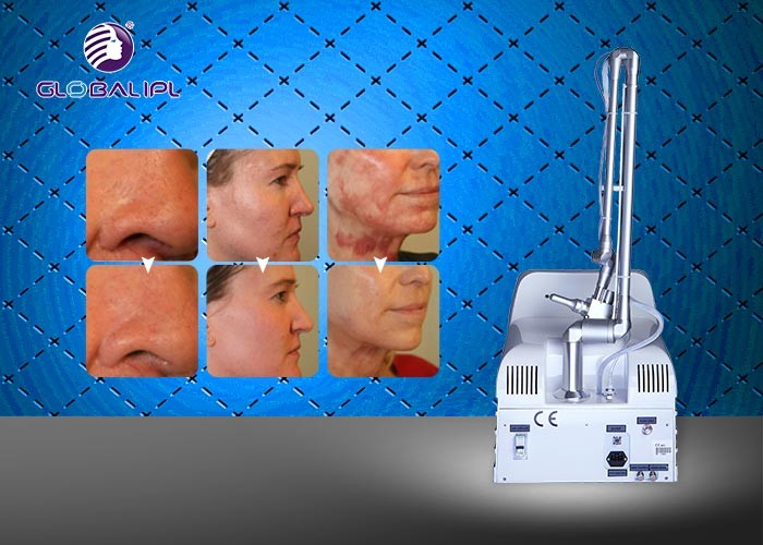 10.6μM Co2 Fractional Laser Equipment / Beauty Laser Equipment With 6 Scan Modes